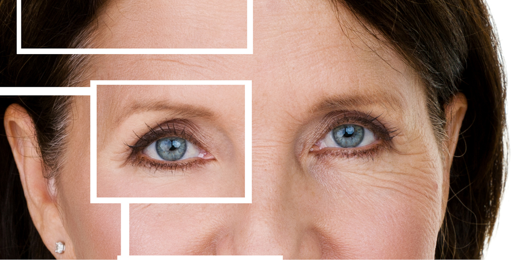 St  Clair Cosmetic ClinicOver 40: Three Tips to Banish Eye Wrinkles