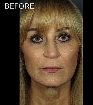 Juvederm before